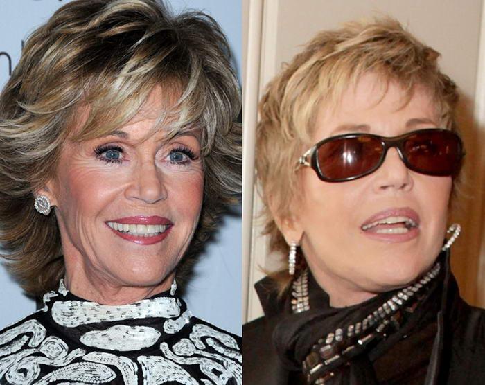 Cosmetic Surgeries Jane Fonda